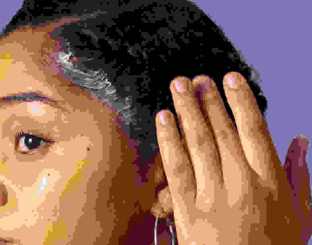 Image card - Traitements pour le cuir chevelu